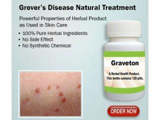 Herbal Supplement for Grovers Disease