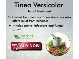 Herbal Supplement for Tinea Versicolor