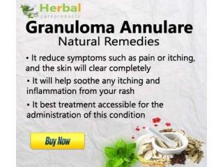 Herbal Supplement for Granuloma Annulare