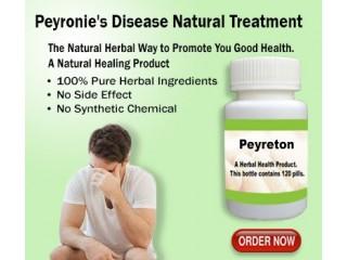 Some of the Natural Ways Treat Peyronies Disease